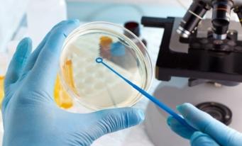 Studiu: Cercetătorii au descoperit bacterii care, infuzate cu argint, pot produce electricitate